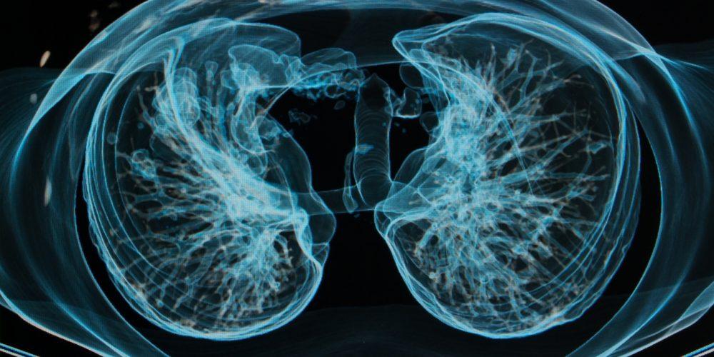 Czym jest mukowiscydoza? Co to za choroba?